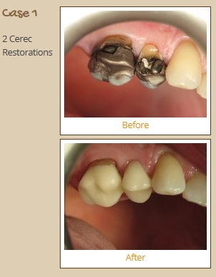 cerec-case1