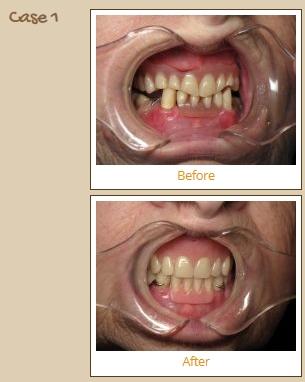 dentures-case1
