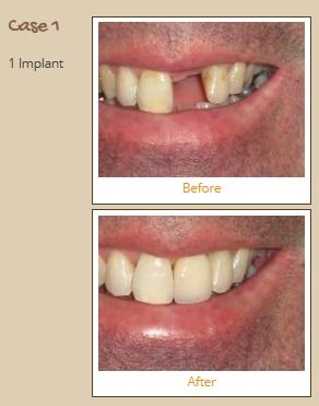implant-case1
