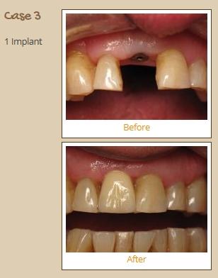 implant-case3