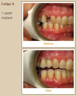 implant-case4