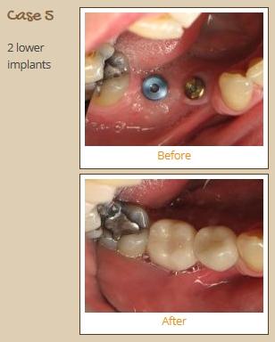 implant-case5