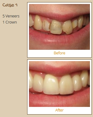 porcelain-veneers-case1