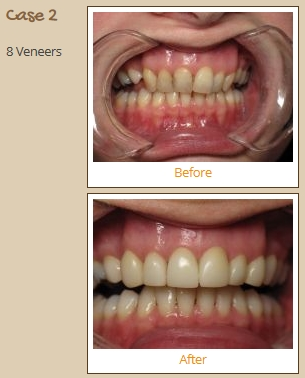 porcelain-veneers-case2