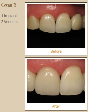 porcelain-veneers-case3
