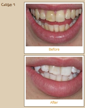 teeth-whitening-case1