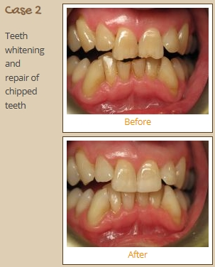 teeth-whitening-case2